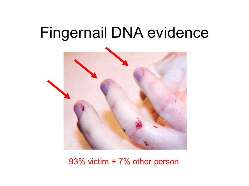 Fingernail DNA evidence 93% victim + 7% other person