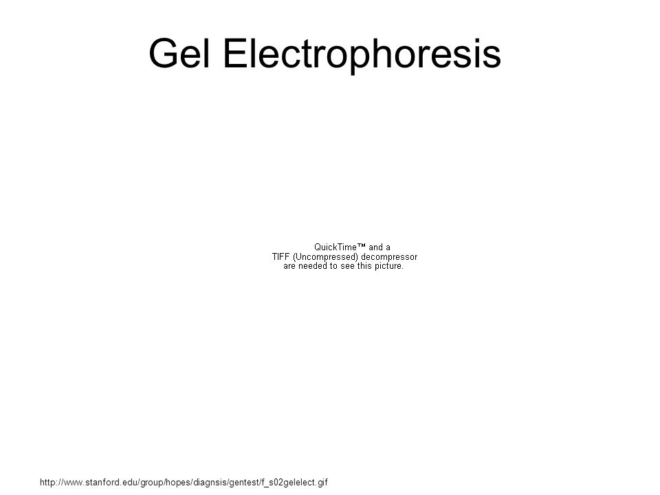 Gel Electrophoresis http://www.stanford.edu/group/hopes/diagnsis/gentest/f_s02gelelect.gif