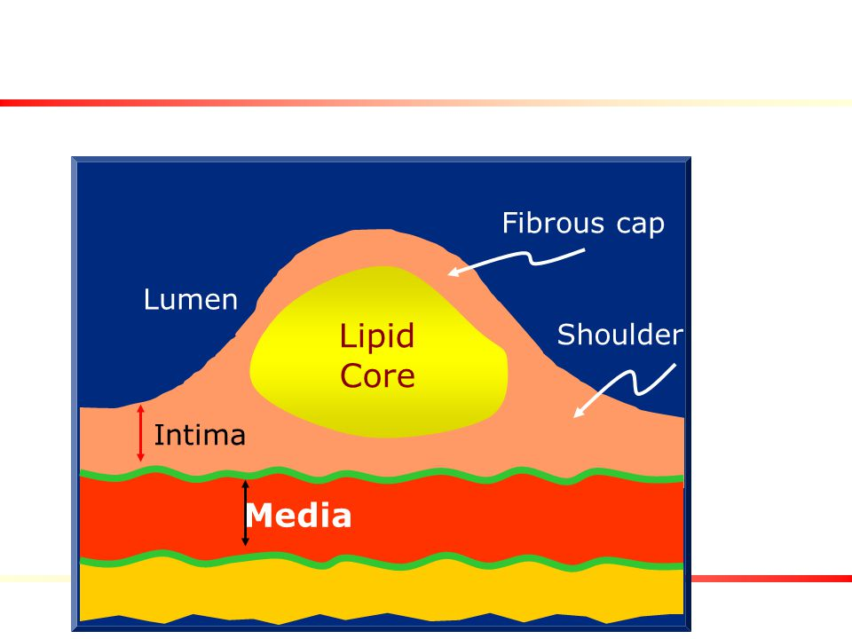 Lumen Lipid Core Fibrous cap Shoulder Intima Media