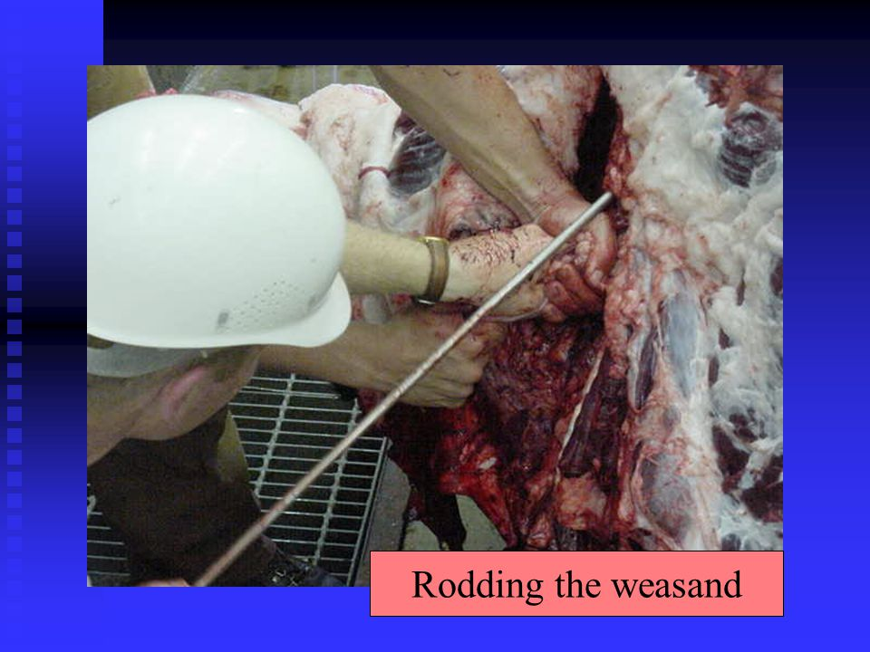 Rodding the weasand