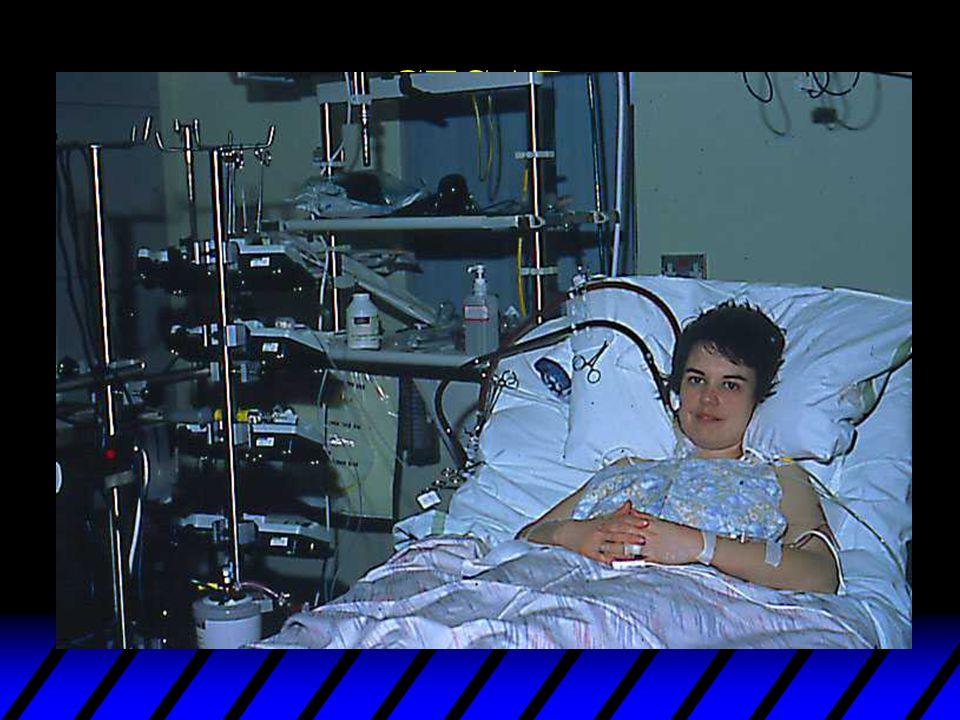 Adult Cardiac ECLS u 10 patients, 5 survived u age 39.6 (19) u Run time 188 (220) hours u PaO2/FIO2 = 81 (20) mmHg