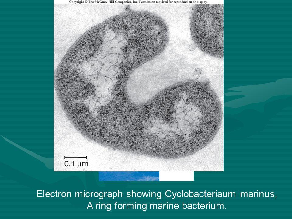 Electron micrograph showing Cyclobacteriaum marinus, A ring forming marine bacterium.