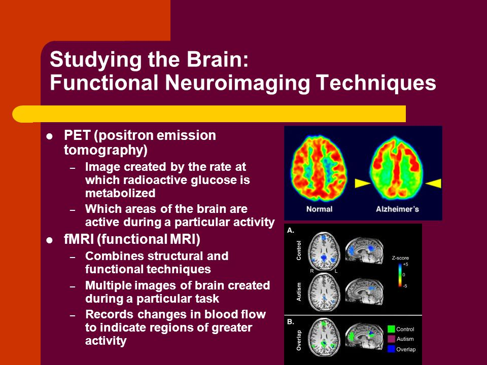 Studying the Brain: Functional Neuroimaging Techniques PET (positron emission tomography) – Image created by the rate at which radioactive glucose is metabolized – Which areas of the brain are active during a particular activity fMRI (functional MRI) – Combines structural and functional techniques – Multiple images of brain created during a particular task – Records changes in blood flow to indicate regions of greater activity