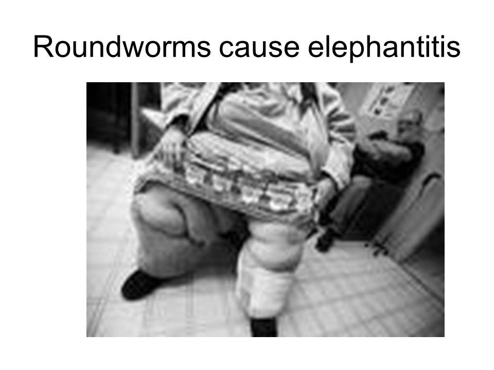 Roundworms cause elephantitis