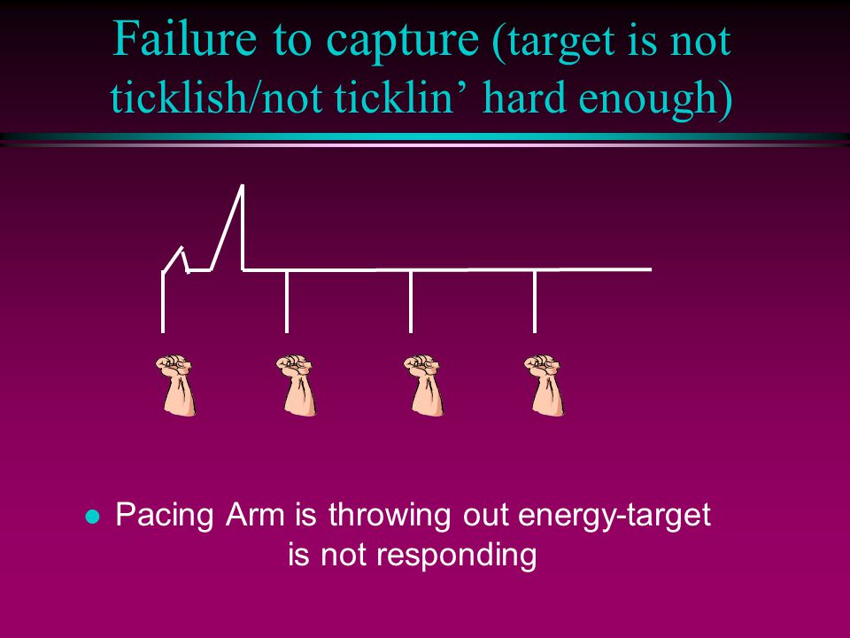 Failure to capture (target is not ticklish/not ticklin' hard enough) l Pacing Arm is throwing out energy-target is not responding