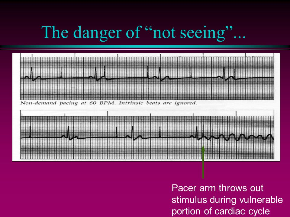 """The danger of """"not seeing""""... Pacer arm throws out stimulus during vulnerable portion of cardiac cycle"""