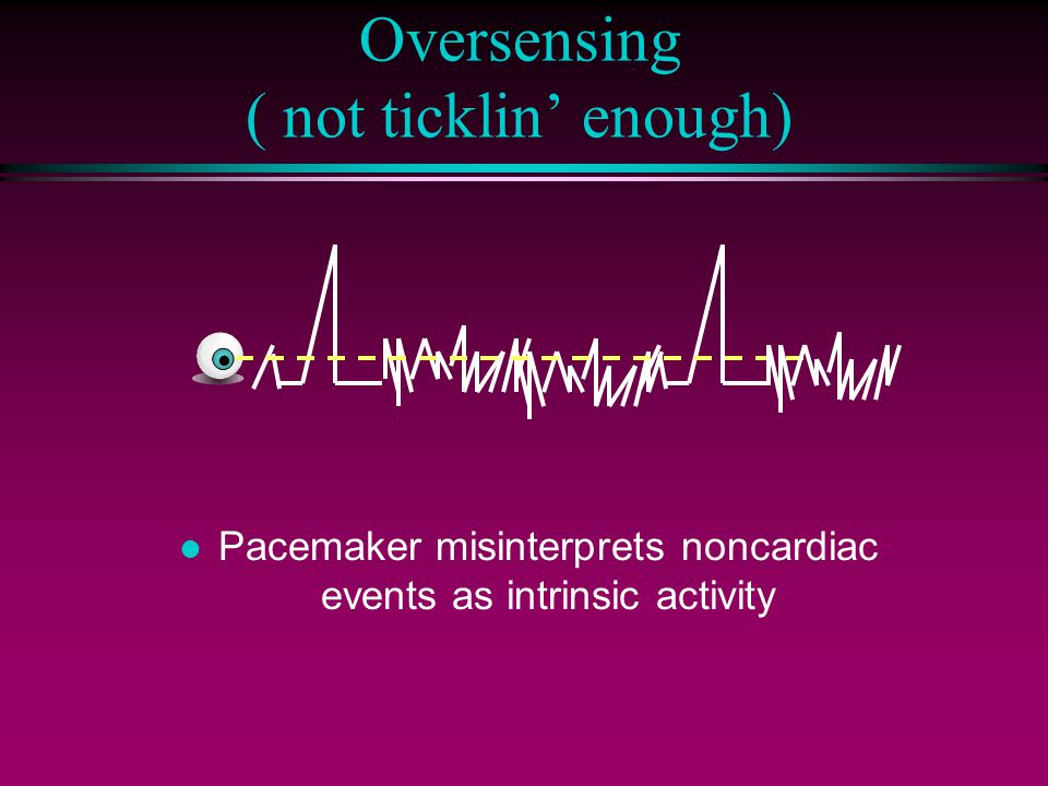 Oversensing ( not ticklin' enough) l Pacemaker misinterprets noncardiac events as intrinsic activity