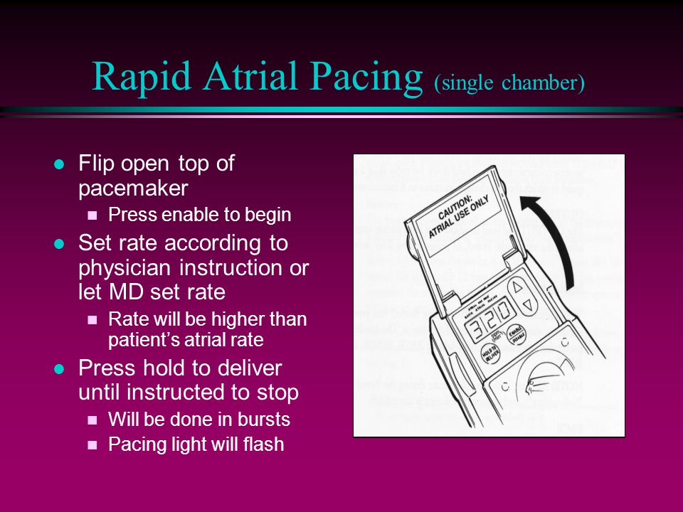 Rapid Atrial Pacing (single chamber) l Flip open top of pacemaker n Press enable to begin l Set rate according to physician instruction or let MD set rate n Rate will be higher than patient's atrial rate l Press hold to deliver until instructed to stop n Will be done in bursts n Pacing light will flash