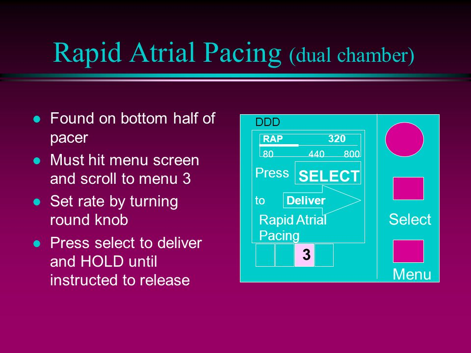 Rapid Atrial Pacing (dual chamber) l Found on bottom half of pacer l Must hit menu screen and scroll to menu 3 l Set rate by turning round knob l Press select to deliver and HOLD until instructed to release Menu Select 3 DDD 80 440 800 RAP 320 SELECT Press toDeliver Rapid Atrial Pacing
