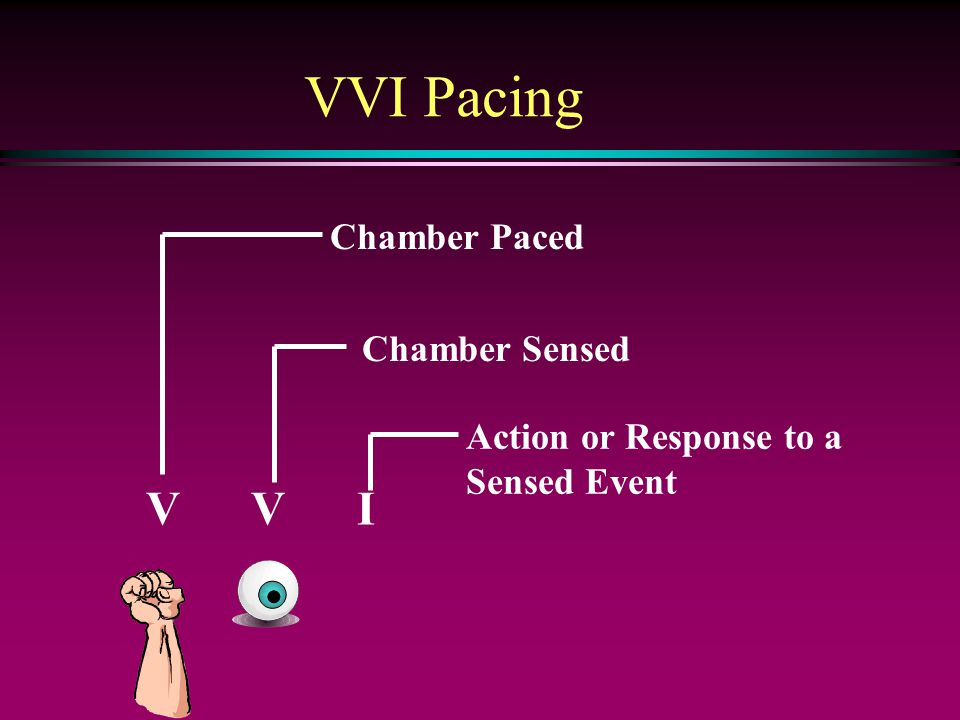 V V I Chamber Paced Chamber Sensed Action or Response to a Sensed Event VVI Pacing