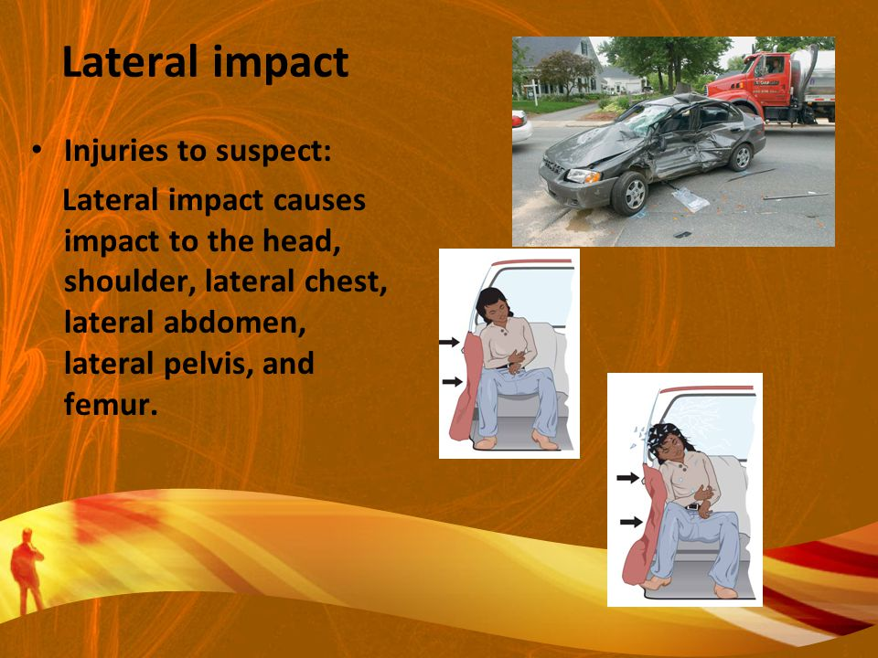 Lateral impact Injuries to suspect: Lateral impact causes impact to the head, shoulder, lateral chest, lateral abdomen, lateral pelvis, and femur.