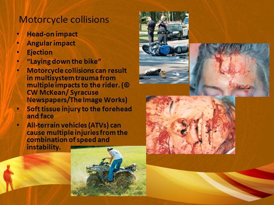 Motorcycle collisions Head-on impact Angular impact Ejection Laying down the bike Motorcycle collisions can result in multisystem trauma from multiple impacts to the rider.