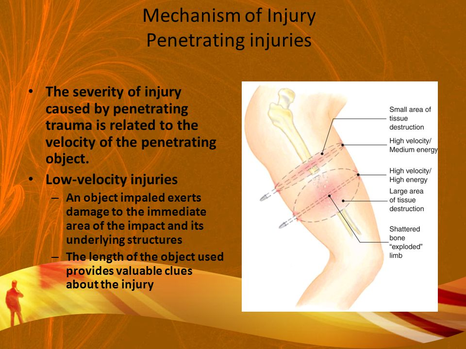 Mechanism of Injury Penetrating injuries The severity of injury caused by penetrating trauma is related to the velocity of the penetrating object.