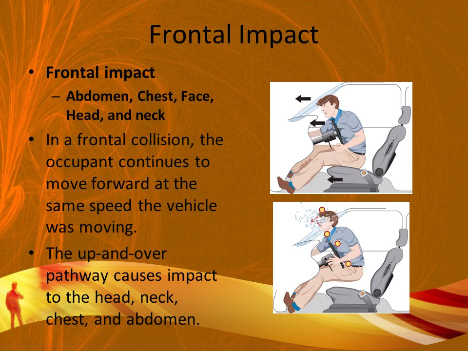 Frontal Impact Frontal impact – Abdomen, Chest, Face, Head, and neck In a frontal collision, the occupant continues to move forward at the same speed the vehicle was moving.