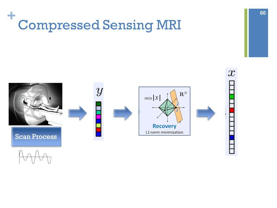 + Compressed Sensing MRI Scan Process 66