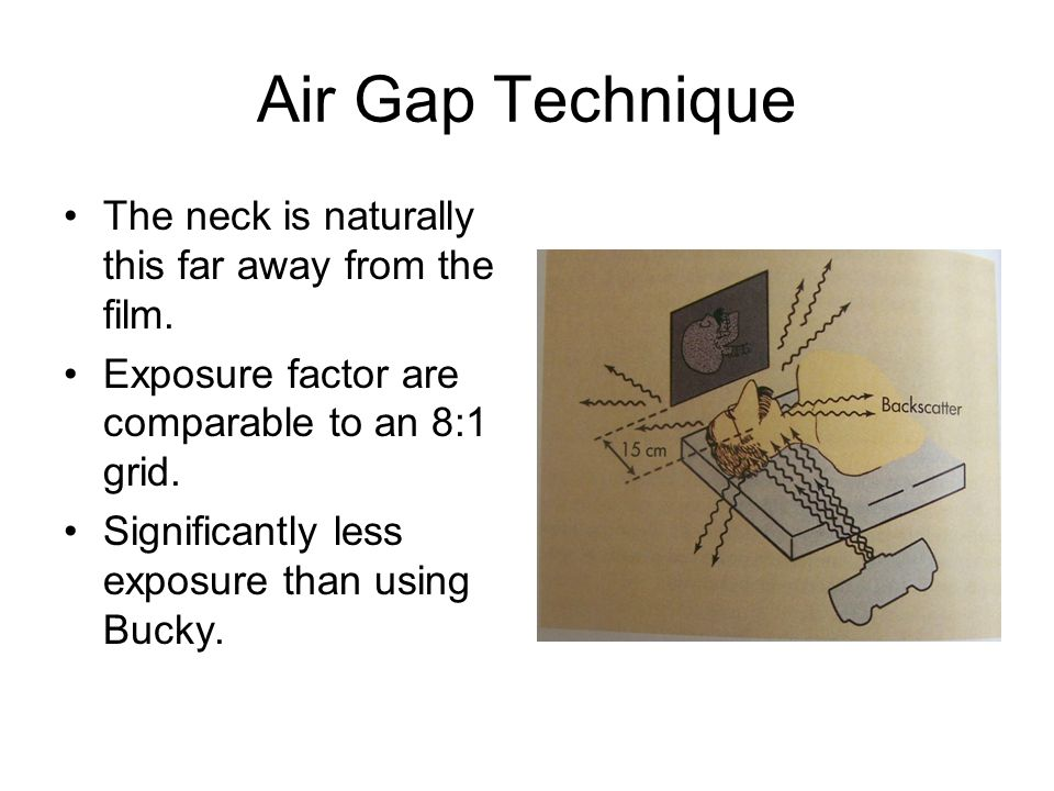 Air Gap Technique The neck is naturally this far away from the film. Exposure factor are comparable to an 8:1 grid. Significantly less exposure than u