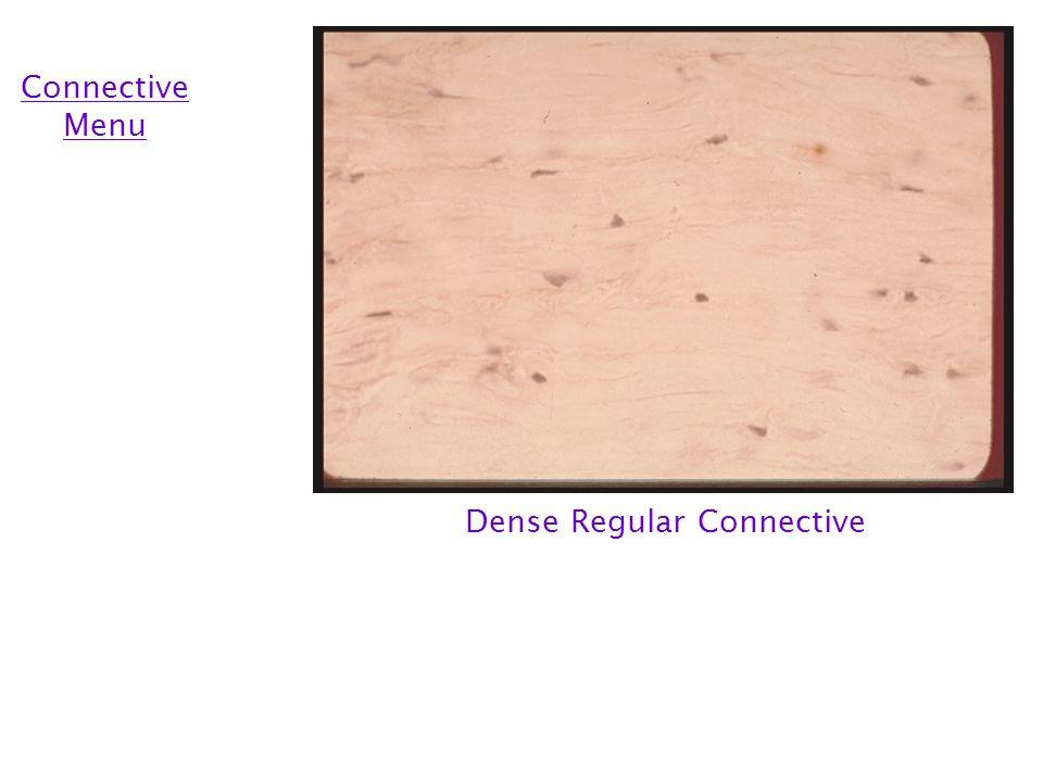 Dense Irregular Connective Connective Menu