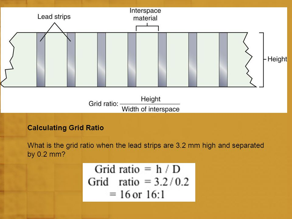 OFF-FOCUS Off-focus grid cutoff occurs when using an SID outside of the recommended focal range.
