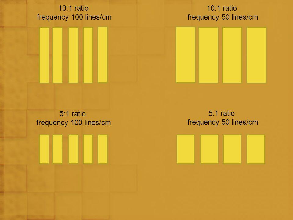 10:1 ratio frequency 100 lines/cm 10:1 ratio frequency 50 lines/cm 5:1 ratio frequency 100 lines/cm 5:1 ratio frequency 50 lines/cm