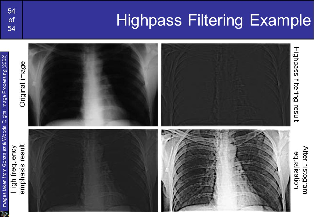 54 of 54 Highpass Filtering Example Original image Highpass filtering result High frequency emphasis result After histogram equalisation Images taken from Gonzalez & Woods, Digital Image Processing (2002)