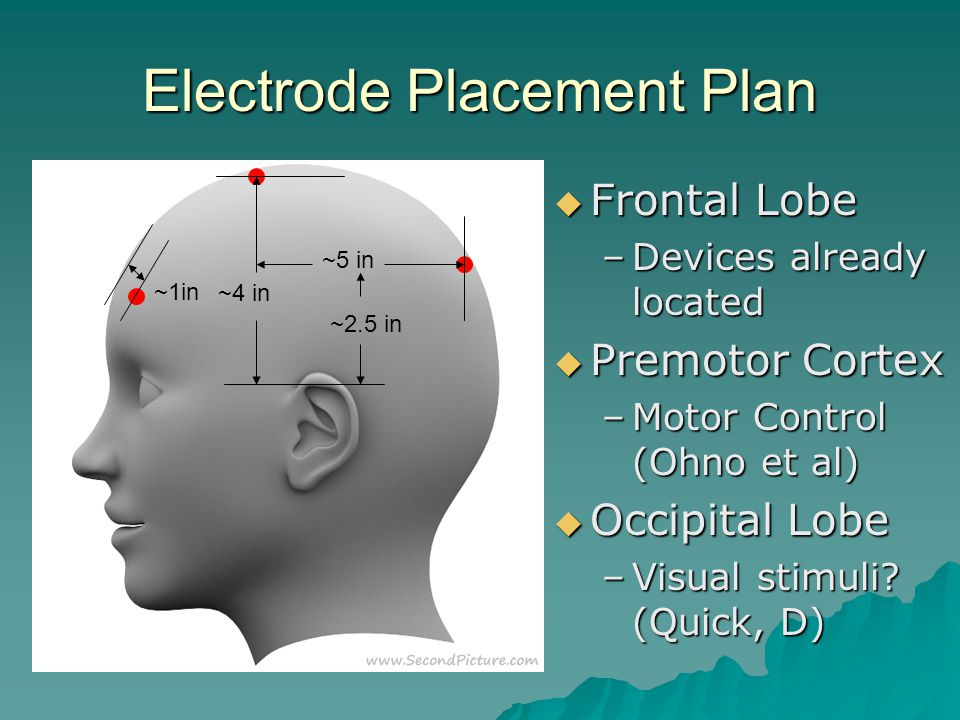 Electrode Placement Plan ~1in ~4 in ~5 in ~2.5 in  Frontal Lobe –Devices already located  Premotor Cortex –Motor Control (Ohno et al)  Occipital Lobe –Visual stimuli.