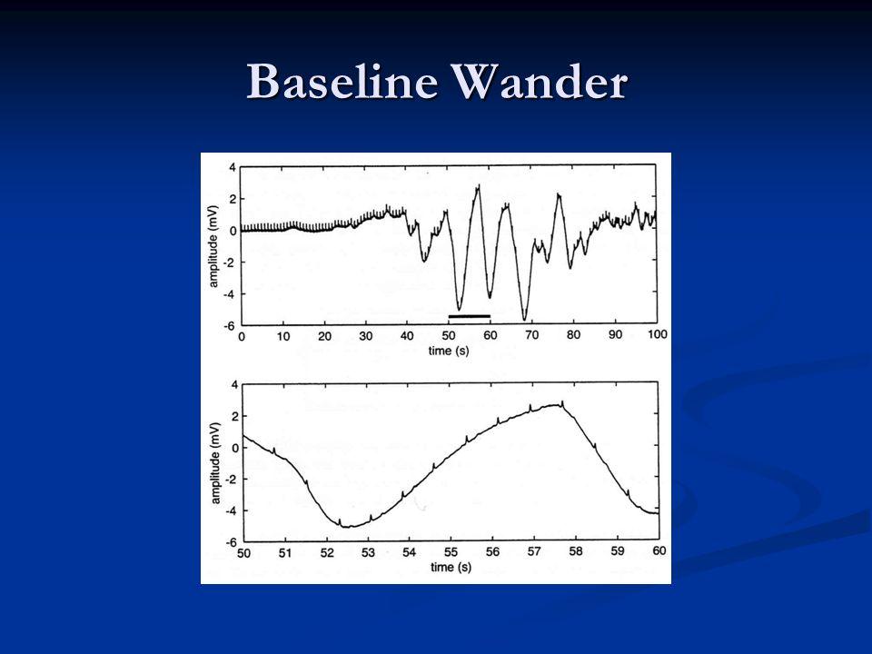Baseline Wander