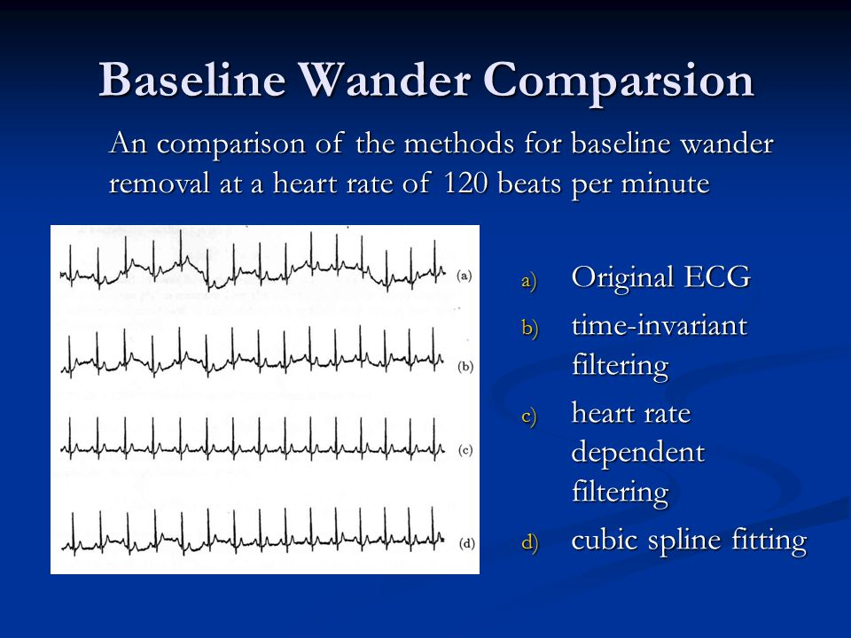 Baseline Wander Comparsion a) Original ECG b) time-invariant filtering c) heart rate dependent filtering d) cubic spline fitting An comparison of the methods for baseline wander removal at a heart rate of 120 beats per minute