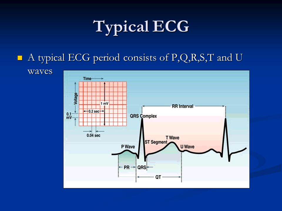 Typical ECG A typical ECG period consists of P,Q,R,S,T and U waves A typical ECG period consists of P,Q,R,S,T and U waves