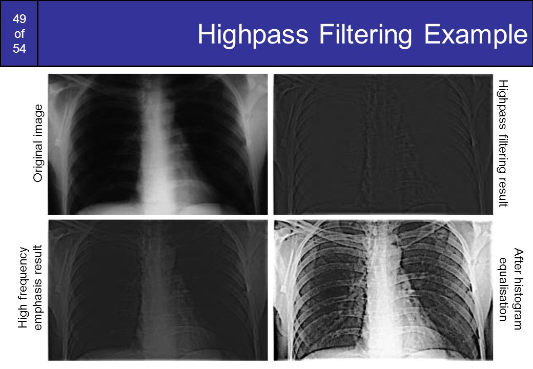49 of 54 Highpass Filtering Example Original image Highpass filtering result High frequency emphasis result After histogram equalisation