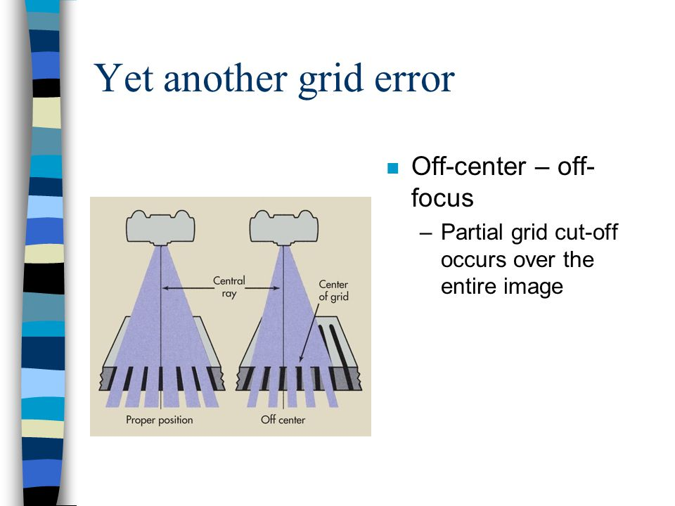 Yet another grid error n Off-center – off- focus –Partial grid cut-off occurs over the entire image