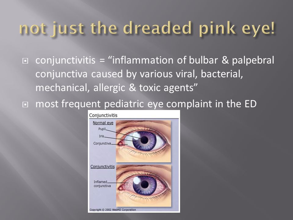 " conjunctivitis = ""inflammation of bulbar & palpebral conjunctiva caused by various viral, bacterial, mechanical, allergic & toxic agents""  most fre"