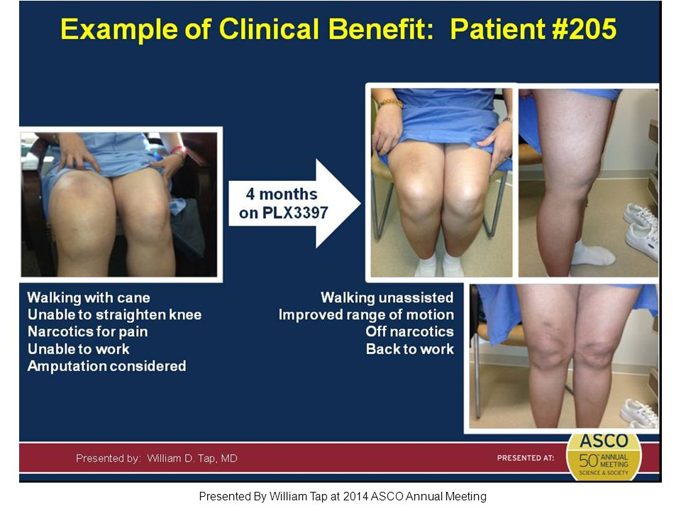 Slide 21 Presented By William Tap at 2014 ASCO Annual Meeting