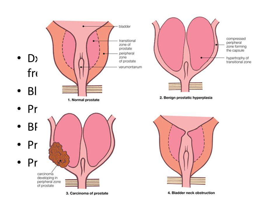 DxT: poor urine flow + straining to void + frequency = BOO Bladder outlet obstruction Prostate cancer BPH Prostatitis Prostatic stones