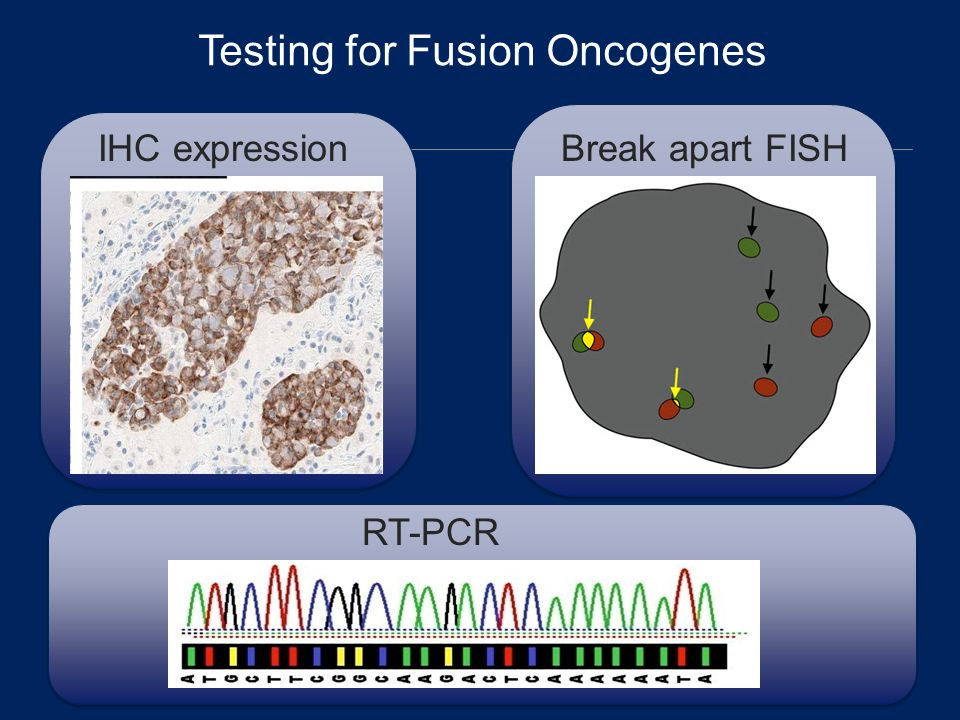 Testing for Fusion Oncogenes Amount of protein on the surface of the cell IHC expression F F Break apart FISH RT-PCR