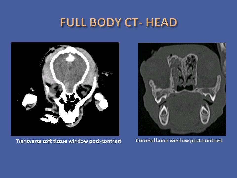 Transverse soft tissue window post-contrast Coronal bone window post-contrast