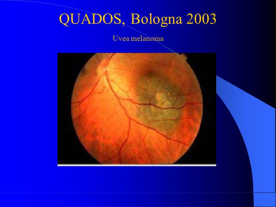 QUADOS, Bologna 2003 Uvea melanoma