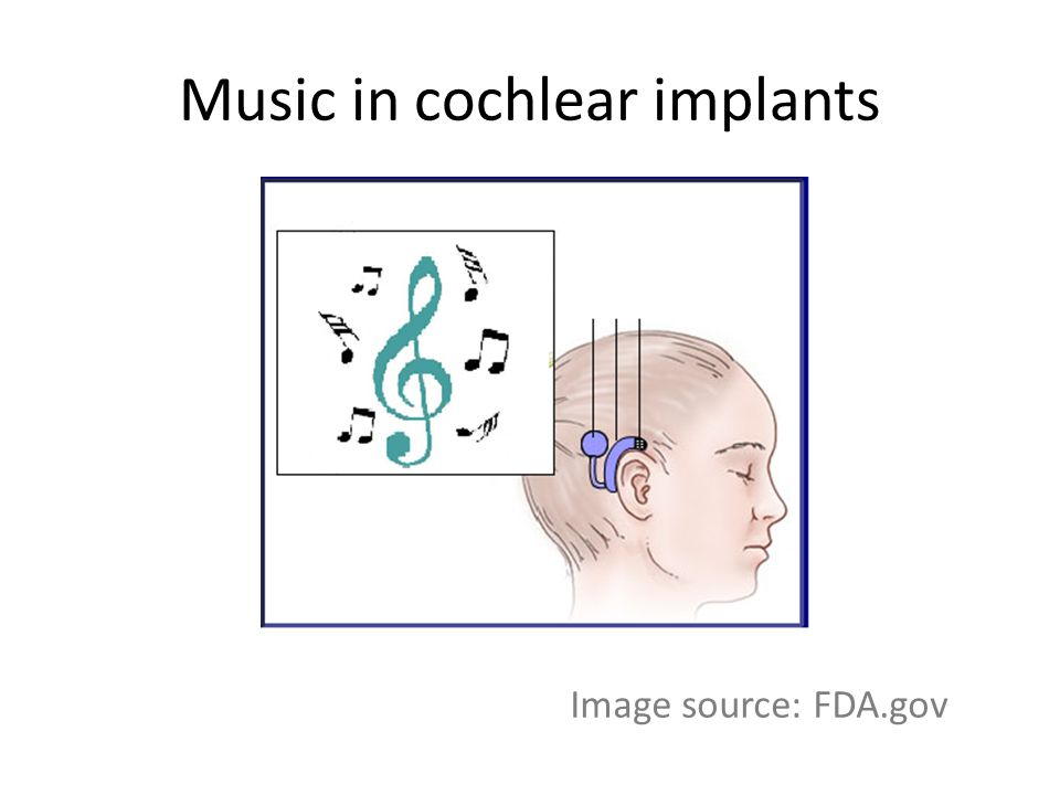 Implications of rate pitch on musical perception and auditory object formation in cochlear implants Bomjun Kwon, Trevor Perry Gallaudet University Dept of Hearing, Speech and Language Washington DC The study was supported by NIDCD (R03 DC009061)