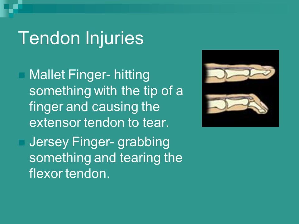 Tendon Injuries Mallet Finger- hitting something with the tip of a finger and causing the extensor tendon to tear. Jersey Finger- grabbing something a