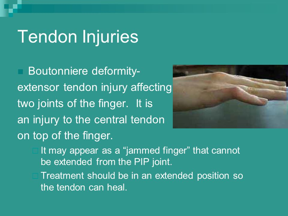Tendon Injuries Boutonniere deformity- extensor tendon injury affecting two joints of the finger. It is an injury to the central tendon on top of the