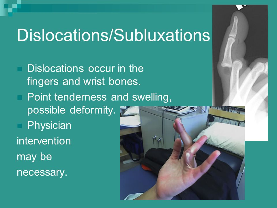 Dislocations/Subluxations Dislocations occur in the fingers and wrist bones. Point tenderness and swelling, possible deformity. Physician intervention