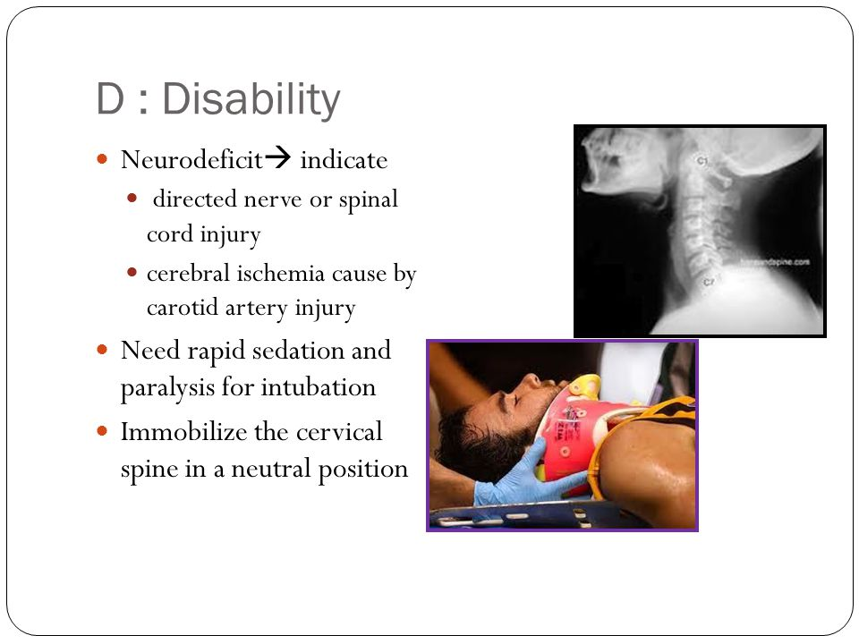 D : Disability Neurodeficit  indicate directed nerve or spinal cord injury cerebral ischemia cause by carotid artery injury Need rapid sedation and p