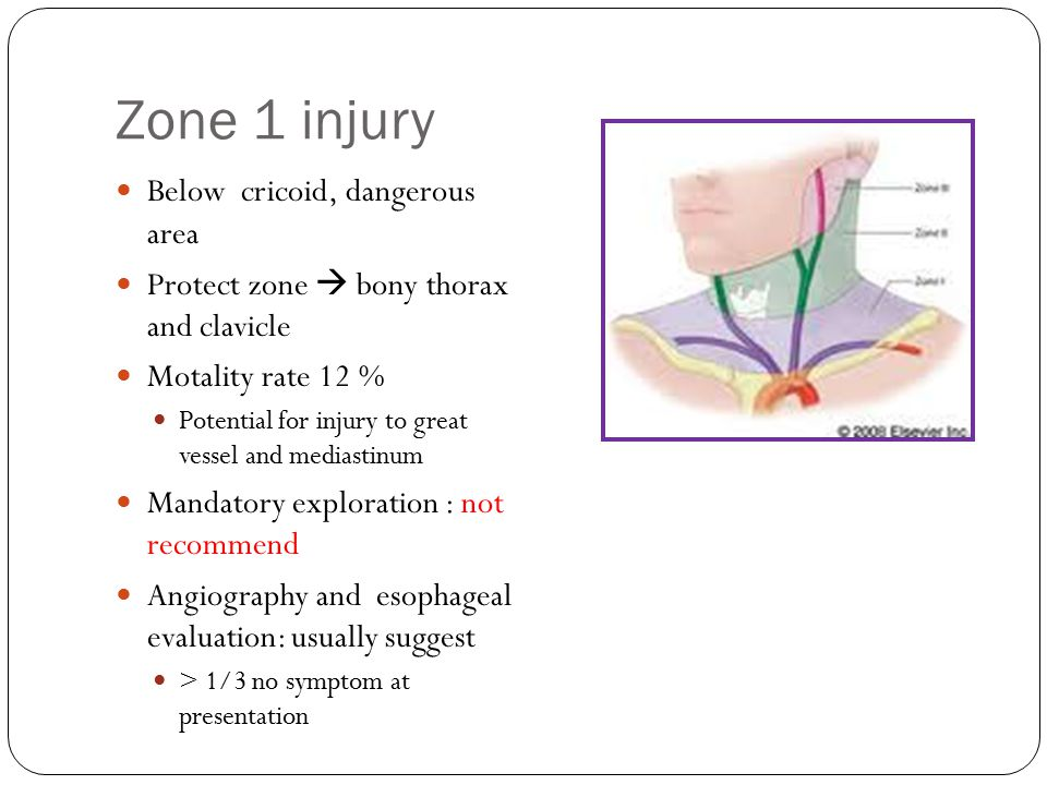 Zone 1 injury Below cricoid, dangerous area Protect zone  bony thorax and clavicle Motality rate 12 % Potential for injury to great vessel and medias