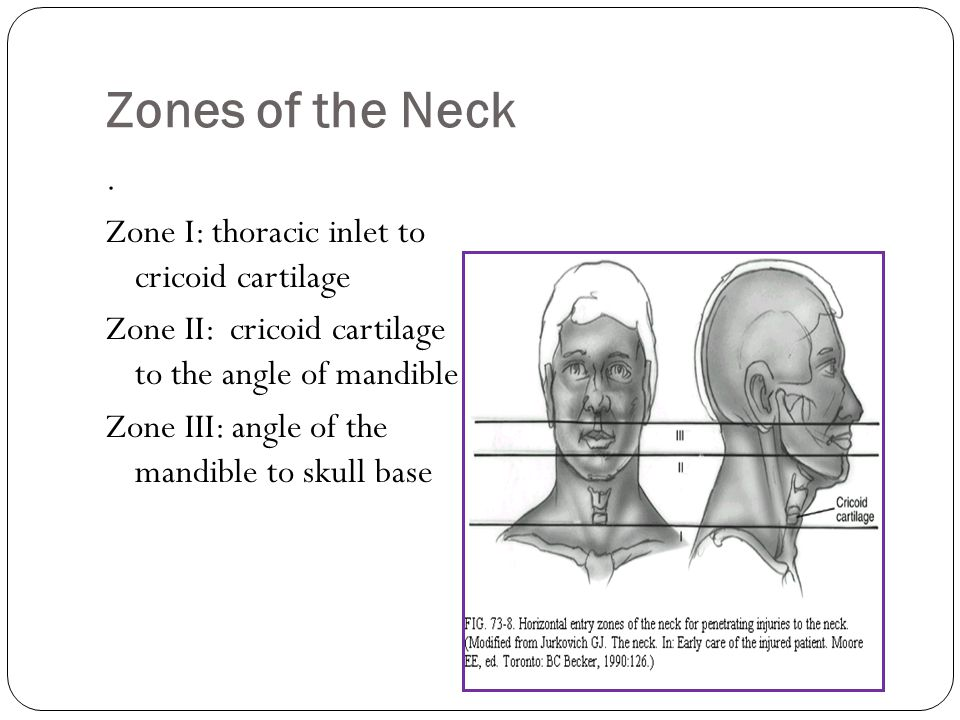 Zones of the Neck. Zone I: thoracic inlet to cricoid cartilage Zone II: cricoid cartilage to the angle of mandible Zone III: angle of the mandible to
