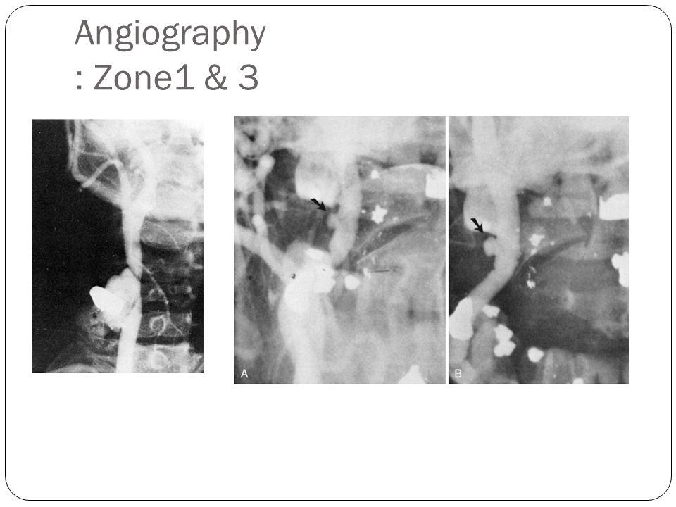Angiography : Zone1 & 3