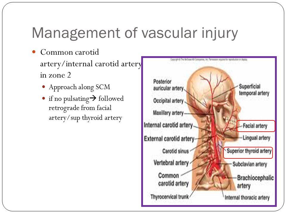Management of vascular injury Common carotid artery/internal carotid artery in zone 2 Approach along SCM if no pulsating  followed retrograde from fa