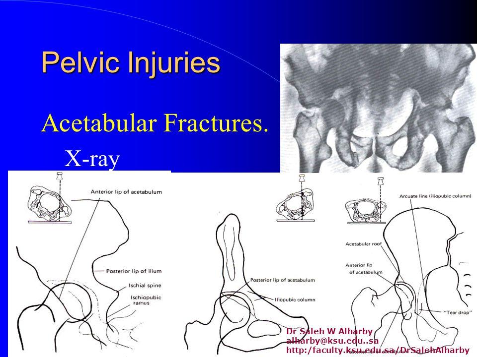 Pelvic Injuries Acetabular Fractures.