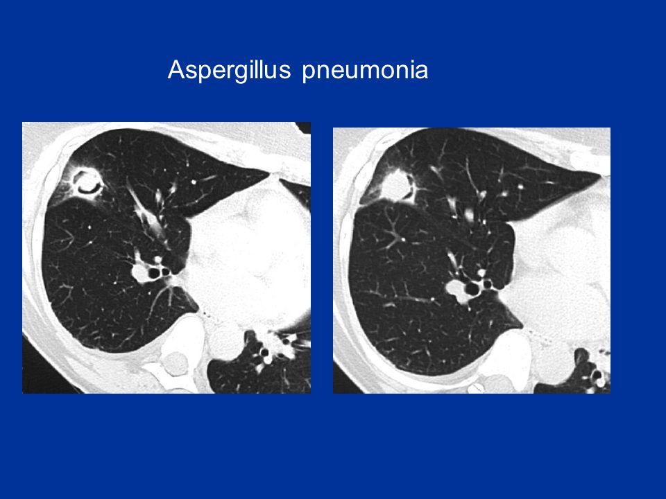 Aspergillus pneumonia