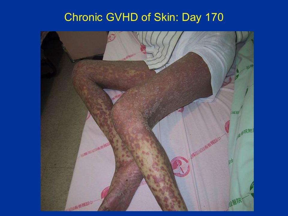 Chronic GVHD of Skin: Day 170