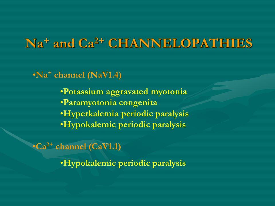 Na + and Ca 2+ CHANNELOPATHIES Na + channel (NaV1.4) Potassium aggravated myotonia Paramyotonia congenita Hyperkalemia periodic paralysis Hypokalemic periodic paralysis Ca 2+ channel (CaV1.1) Hypokalemic periodic paralysis