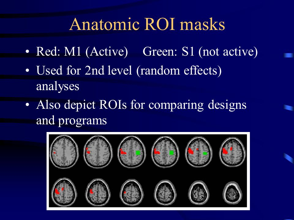 Anatomic ROI masks Red: M1 (Active) Green: S1 (not active) Used for 2nd level (random effects) analyses Also depict ROIs for comparing designs and programs